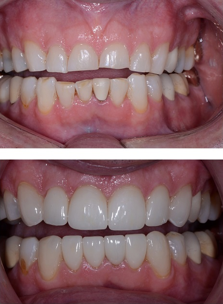 Porcelain Crowns for Front Teeth