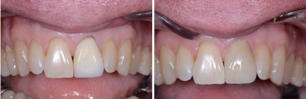 Single Porcelain Crown for Front Tooth